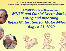 Advances in Neurodevelopment MNRI and Cranial Nerve Work for Eating and Breathing Child Motor Development and Milestones 02 months